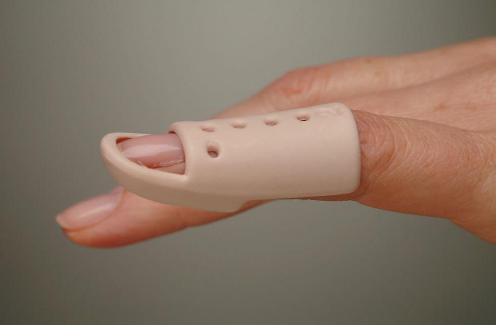 Mallet Finger Splint (MFS)
