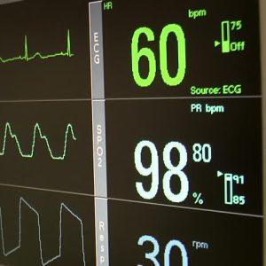 ECG Monitors